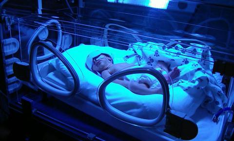 För tidigt födda barn behöver ofta ljusbehandling mot gulsot.
