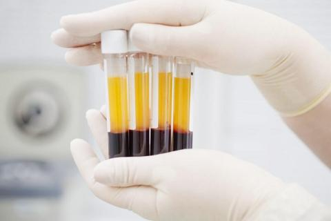 Plasma Fractionation Market Experience Extreme Growth Opportunities during the Forecast 2019-2027 Profiling Bio Products Laboratory, Biotest AG, China Biologic Products Holdings