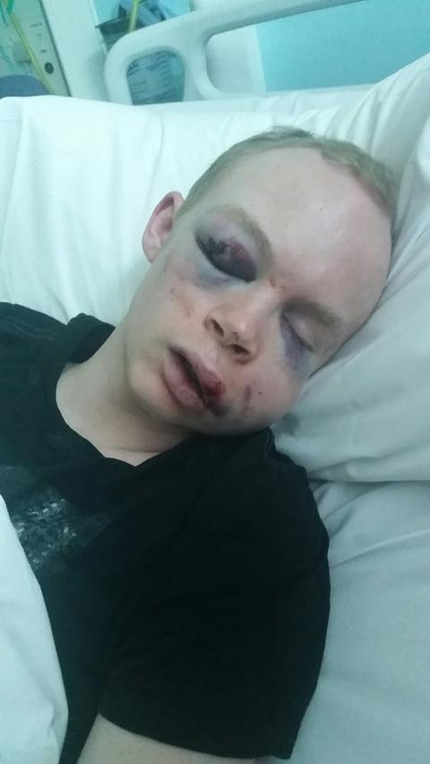 Victim, Callum Wade in hospital