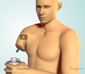 Världspremiär för muskel- och nervstyrd armprotes