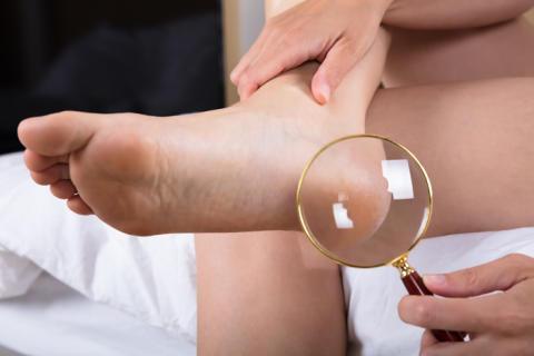 Schulungsziel für Diabetiker: die tägliche Kontrolle der Füße