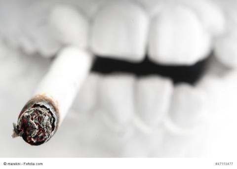 Nikotin – Gefahr für Zähne und Implantate! goDentis informiert zum Weltnichtrauchertag am 31. Mai
