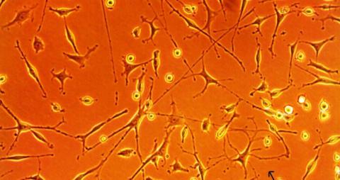 Effekten av blodstamcellstransplantation vid MS ska utvärderas på Akademiska