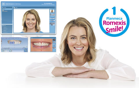 Planmeca Romexis® Smile Design allows dentists to create harmonious new smiles for patients