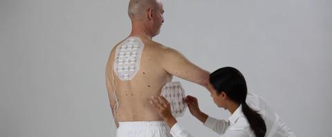 TTFields godkänt i USA för behandling av mesoteliom