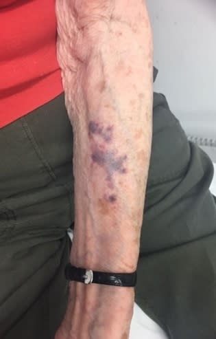 Bruising to the victim's arm