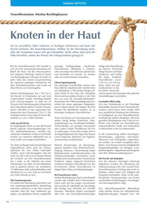 Neurofibromatose (Morbus Recklinghausen): Knoten in der Haut