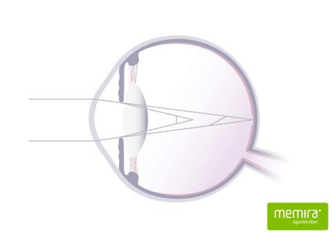 astigmatism_web