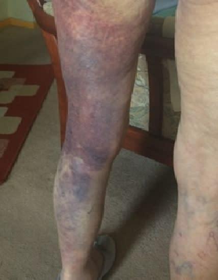 Bruising caused to the victim's legs
