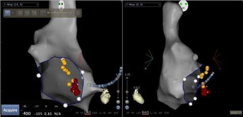 Global Intraoperative Imaging Industry Market Research Report 2017
