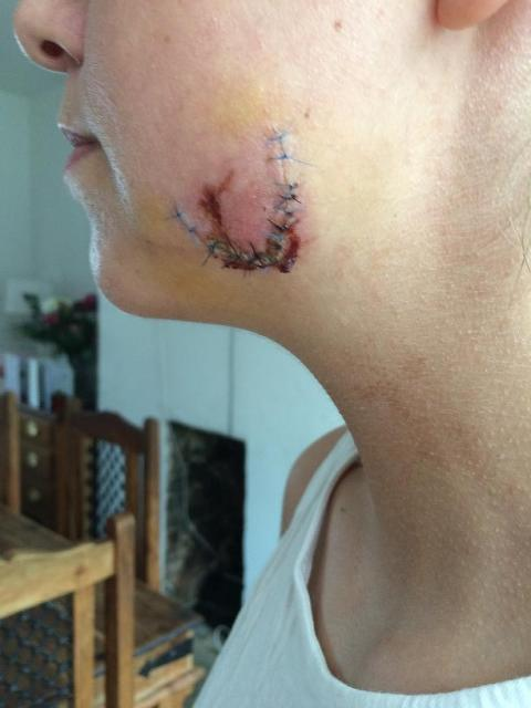 Police appeal after young woman bitten on the face