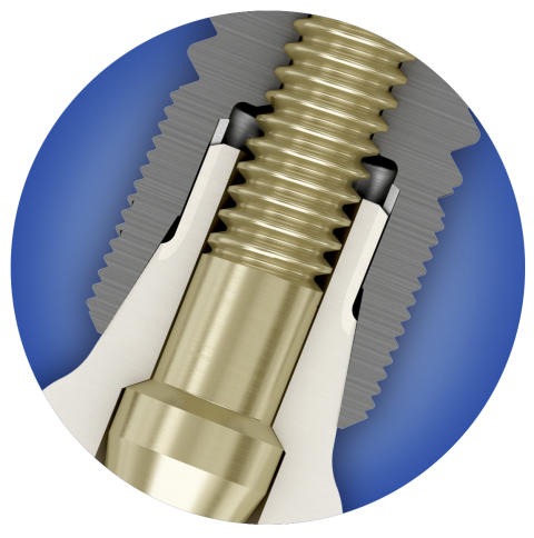 Conical Seal Design-Funktion  ASTRA TECH Implant System