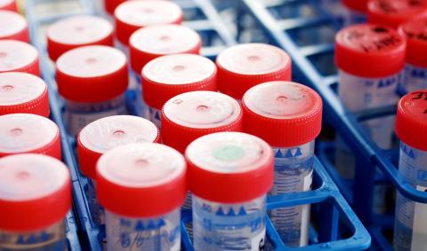 VA SYD ringar in bakteriekälla i Lunds dricksvatten