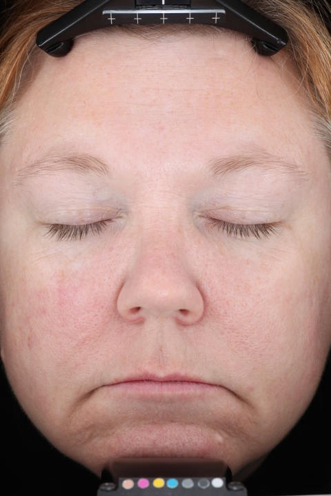 Patient 6 timmar efter behandling med Mirvaso (brimonidin)