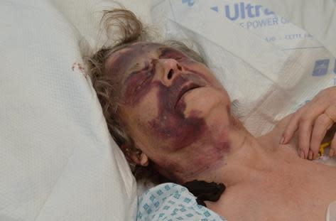 Iris Warner - injuries