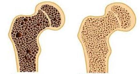 Bone Cancer Drugs Market Thorough Analysis and Emerging Growth by 2027 with Top  Industry Players Mylan Institutional LLC, Hospira Inc., Sun Pharmaceutical Industries Inc., Teva Pharmaceutical Industries