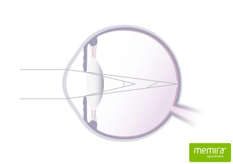 astigmatism_print
