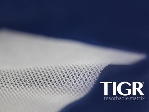 Clinical evaluation of TIGR® Matrix at Akademikliniken in Stockholm extended – A regional collaboration with global impact