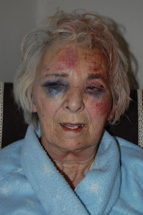 Reward offered after pensioner brutally assaulted in Lambeth