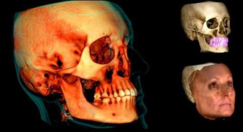 Scientific evidence on the effectiveness of the Planmeca Ultra Low Dose™ imaging protocol
