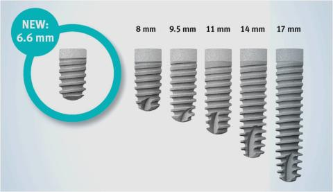 ANKYLOS® Implant System – new implant length 6.6 mm