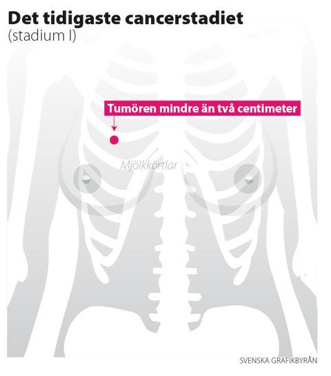 Nyhetsgrafik: Bröstcancer – stadium I