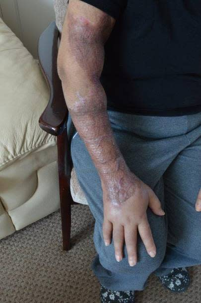 Burns suffered by 69-year-old woman