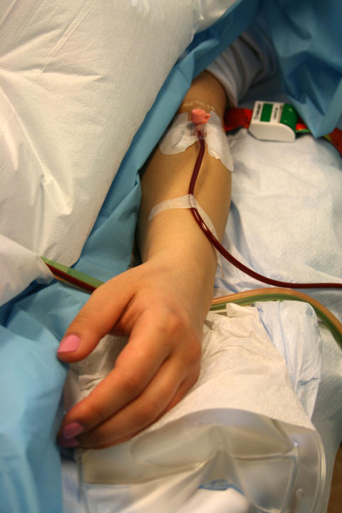 Skörd av stamceller inför transplantation vid MS