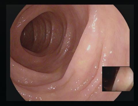 Innenansicht eines sauber gespülten Darms während der Koloskopie