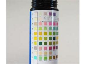 Industry Data Analysis of Global Urine Reagent Strips Sales Market Report 2018