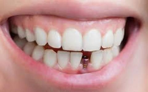 Dental Implants Market Business Overview and Analysis 2019-2027 Profiling Top Companies-Bicon, DIO IMPLANT, DENTIUM, Adin Global