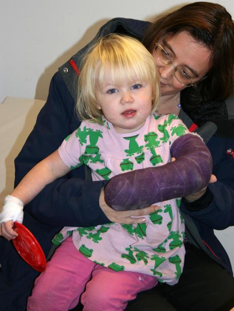 Barn med sammanvuxna fingrar får bra funktion efter operation