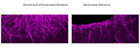 Mechanism for the formation of new blood vessels discovered