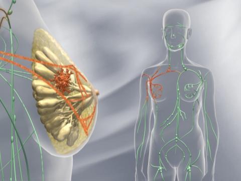 Roches brystkreft-medisin Perjeta® godkjent i Norge for behandling av tidlig, HER2-positiv brystkreft