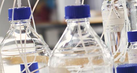 En mix av antikroppar driver på inflammation vid ledgångsreumatism