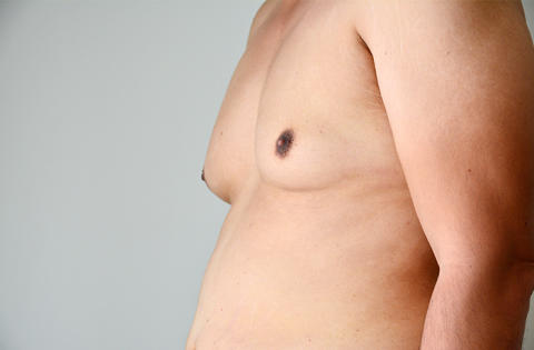Man Boobs: A Real Problem That You Should Consider Surgery For?
