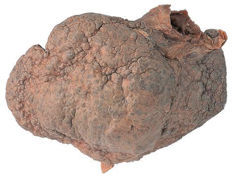 Skrumplever (cirros)