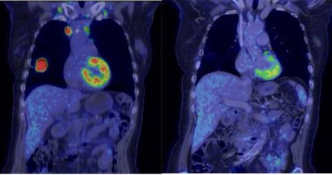 Cytostatika och immunterapi jämförs i banbrytande lungcancerstudie