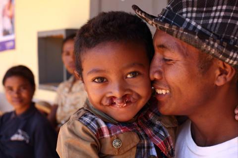 5-årige Heritiana på Madagaskar, föddes med både dubbelsidig läppspalt och gomspalt. Här gosar han med sin pappa Olivier.