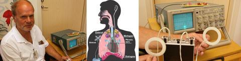 Akademiska pionjär på ny behandling för barn som glömmer att andas