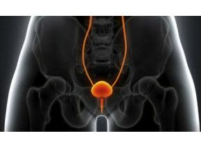 Global Urinary Incontinence Market Research Report 2017