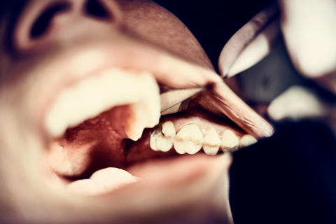 Flere og flere får tandsygdomme som bivirkning af medicin