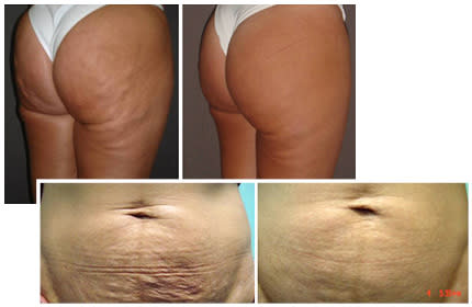 Stureplanskliniken – först i Skandinavien med Carboxy therapy: en ny metod för hudbristningar, celluliter, ärr och fett