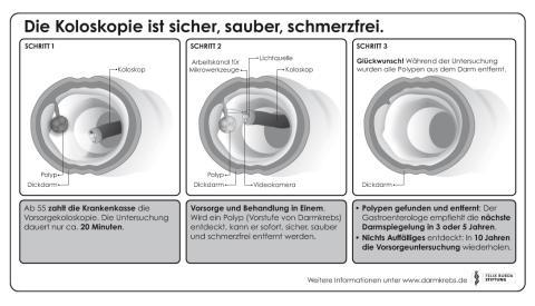 Die Koloskopie ist sicher-sauber-schmerzfrei - Koloskopie in drei Schritten