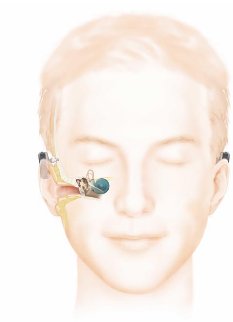 Unikt möte för användare av benförankrade hörapparater, Baha®