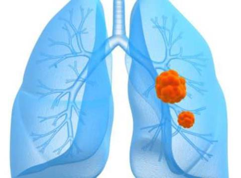 Ett nytt läkemedel förlänger överlevnaden för patienter med en viss typ av lungcancer