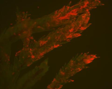 Cyanobakterien Stigonema på ytan av ett mossblad sett med fluorescensljus i mikroskop.
