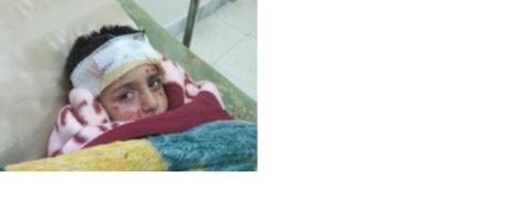 Syrien: Klusterbombattack mot bostadsområde