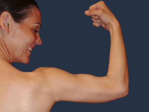 Linda 34 år, efter viktminskning på 80 kg samt 9 dagar efter hudförminskning hudreduktion på Art Clinic.
