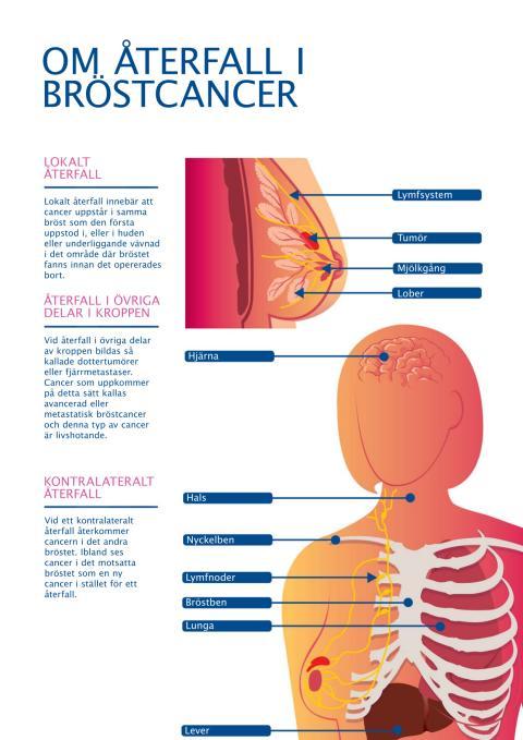 Återfall i bröstcancer - illustration